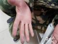 增雨人员粗糙的手。(图片来源于呼伦贝尔市气象局)
